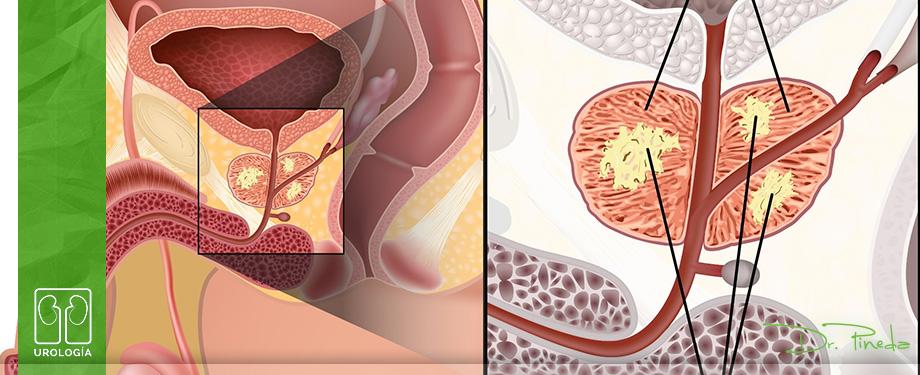 Biopsia de Próstata.